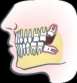 Wisdom Teeth in Teenagers -