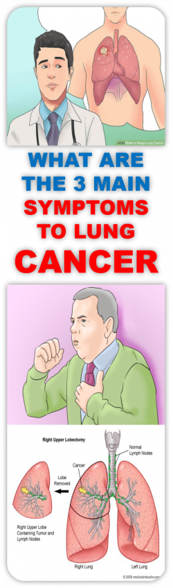 The main three symptoms to lung cancer that should not be ignored ...