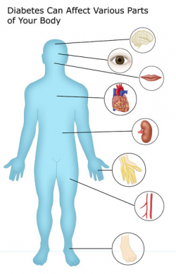 Complications of Diabetes – Real-World Info from DiabetesMine