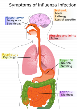 File:Diagram of influenza infection symptoms EN.svg - Wikimedia Commons