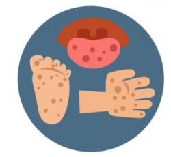 Hand-Foot-and-Mouth Disease - Kids Plus Pediatrics
