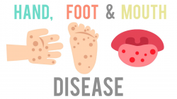 Hand, Foot & Mouth Disease: WHAT YOU SHOULD KNOW | KPJ Ipoh