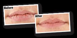 Lip Repair Lip Balm | O'Keeffe's Lip Repair® Lip Balm
