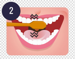 Tooth brushing Teeth cleaning Dentistry Oral hygiene, teeth ...